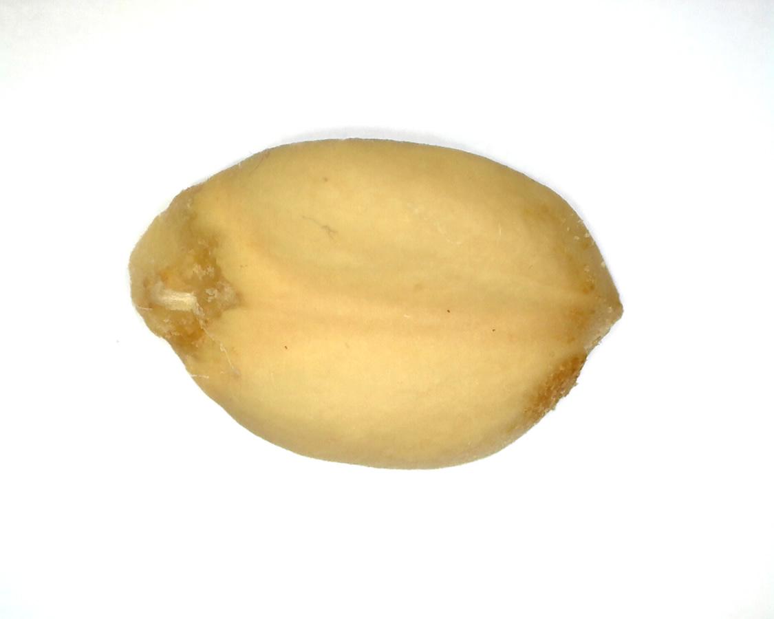 Tulpen-Magnolie 36